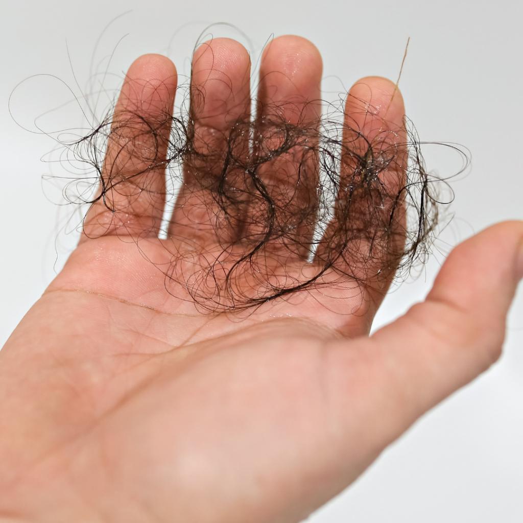 alopecie chute cheveu femme