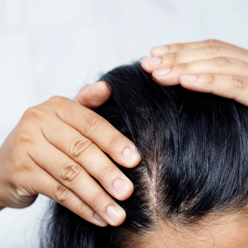 alopecie femme capillcare  solution cheveu anti casse