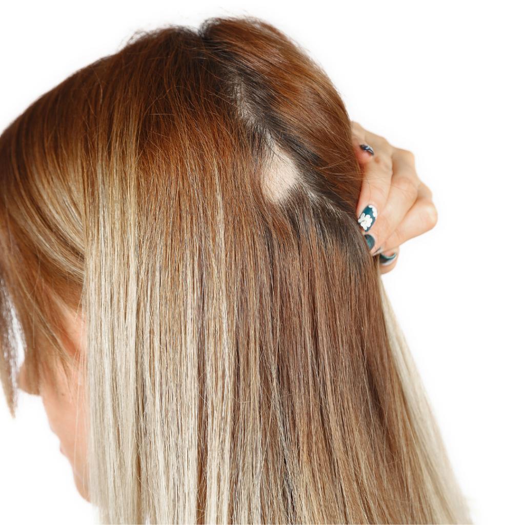 pelade chute cheveux solution capillcare